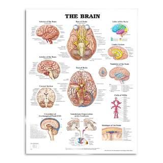Hjernelamineret plakat