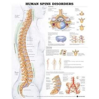 Sygdomme i rygsøjlen Lamineret plakat Engelsk (Human rygsygdomme)
