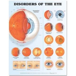 Øjneforstyrrelser Lamineret plakat (Øjenforstyrrelser)