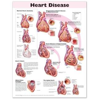 Lamineret plakat på hjertesygdom på engelsk