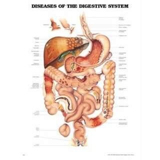 Sygdomme i fordøjelsessystemet lamineret plakat engelsk