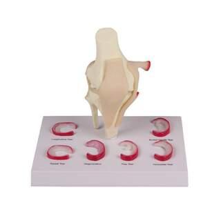Knee model med menu lektioner