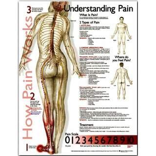 Forstå smerteposter