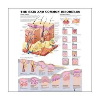 Plakat - hud og almindelige sygdomme engelsk
