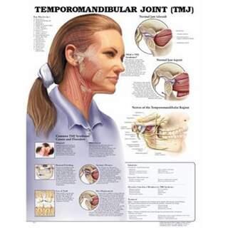 Temporomandibulær ledsygdom (TMJ) lamineret engelsk