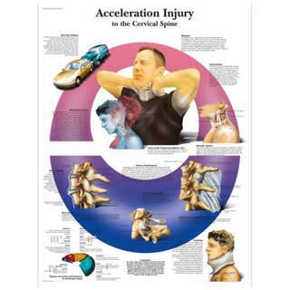Anatomi plakat - Whiplash - nakkeskader