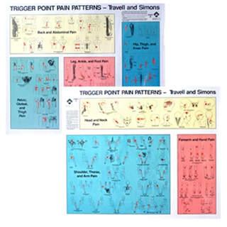 Triggerpunkter Plate | Pain Mønstre Set Travell & Simons