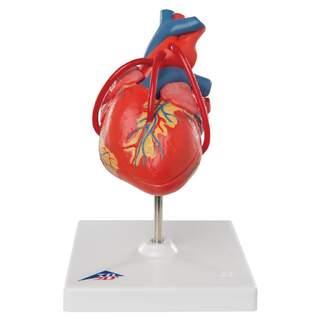 Hjertemodel, der viser resultatet efter en bypass-operation