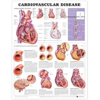 Lamineret plakat på kardiovaskulær sygdom på engelsk