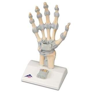 Hånd Skeleton med ledbånd og karpaltunnelsyndrom